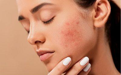 Comment prendre soin des boutons du visage de manière naturelle?